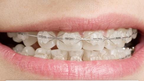 Chỉ là niềng răng thôi mà cũng có rất nhiều phương pháp, loại hình khác nhau để các bạn lựa chọn