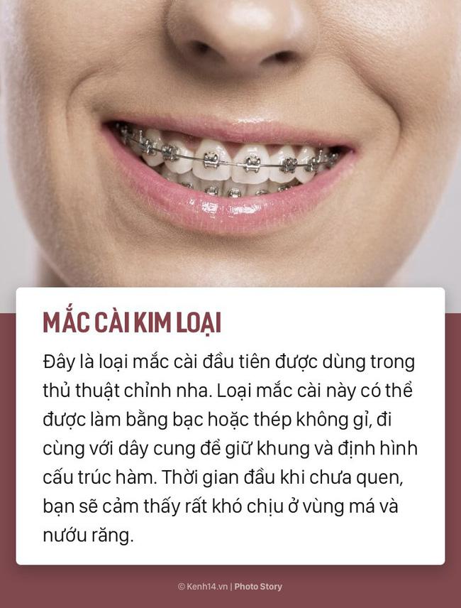 Chỉ là niềng răng thôi mà cũng có rất nhiều phương pháp, loại hình khác nhau để các bạn lựa chọn-1