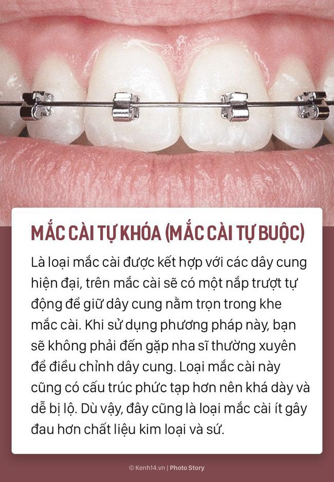 Chỉ là niềng răng thôi mà cũng có rất nhiều phương pháp, loại hình khác nhau để các bạn lựa chọn-3