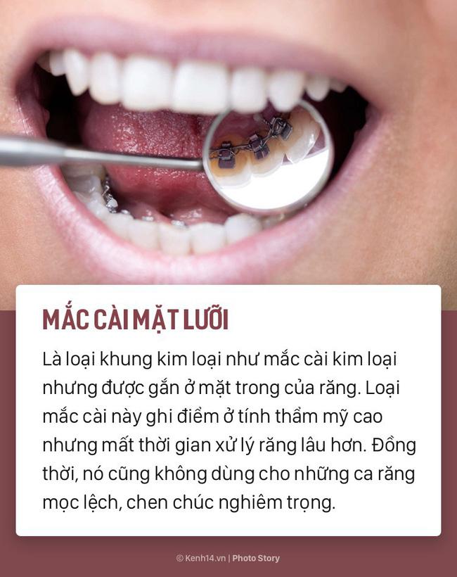 Chỉ là niềng răng thôi mà cũng có rất nhiều phương pháp, loại hình khác nhau để các bạn lựa chọn-4