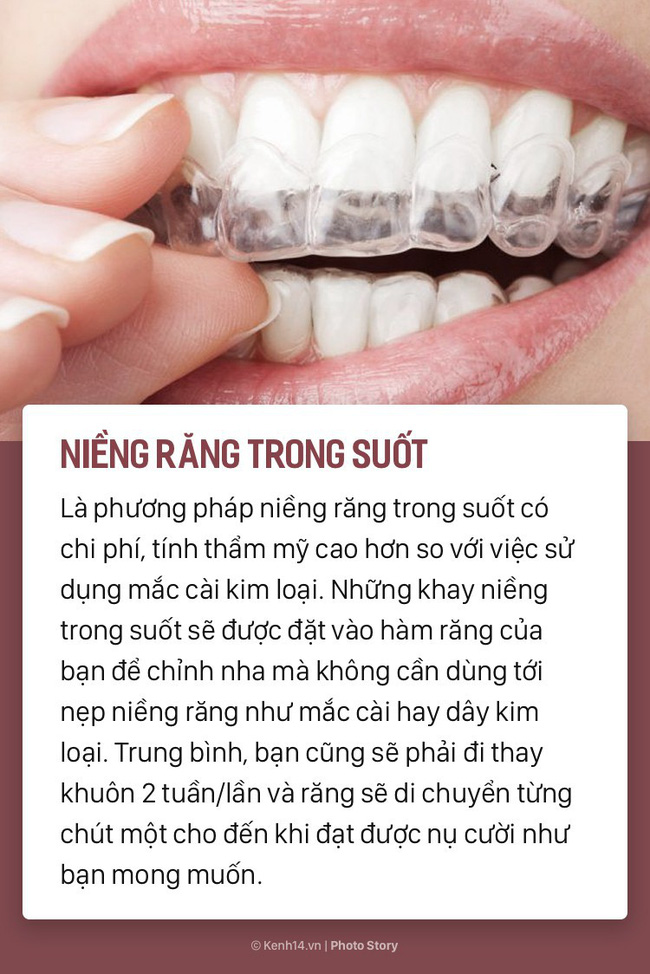 Chỉ là niềng răng thôi mà cũng có rất nhiều phương pháp, loại hình khác nhau để các bạn lựa chọn-5