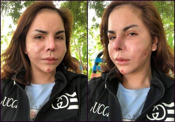 Người nổi tiếng từng gặp biến chứng sau dao kéo, có người phải sống mãi với gương mặt đáng sợ-21