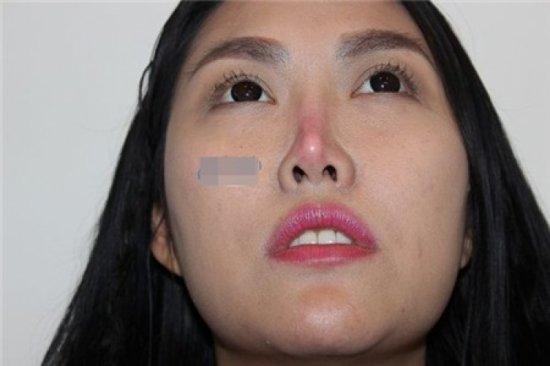 Người nổi tiếng từng gặp biến chứng sau dao kéo, có người phải sống mãi với gương mặt đáng sợ-8