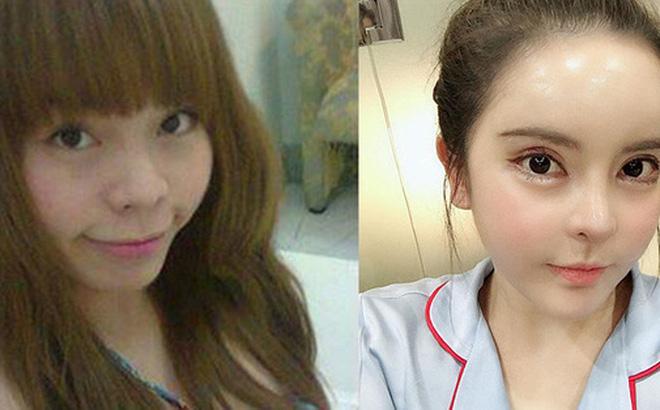 Mẹ Việt 2 con chi gần 1 tỷ đồng cho 8 cuộc phẫu thuật nâng cấp dung mạo, được trang báo Hàn đình đám Dispatch đưa lên trang nhất và gọi là