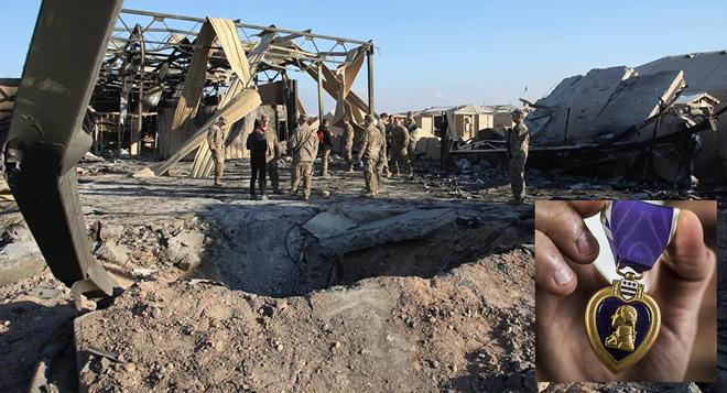 Bị Iran tấn công tên lửa, 110 lính Mỹ sốc nặng, cấp cứu khẩn và được... thưởng huy chương?-1