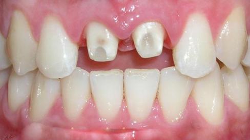Có nên mài răng làm răng sứ?