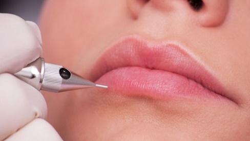 Phẫu thuật thẩm mỹ môi: Nên chọn xăm, phun hay điêu khắc?