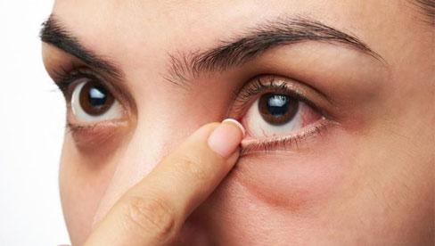 Cộm mắt, biểu hiện của bệnh gì?