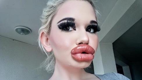 Bơm môi dày , tiêu chuẩn đẹp của một số cô gái sao lạ quá!