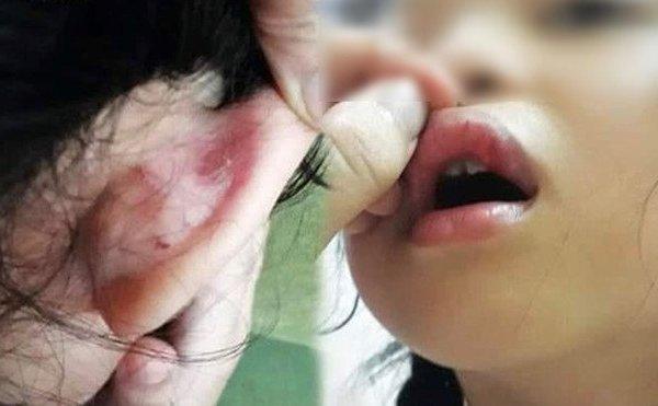 Hà Nội: Công an vào cuộc vụ phụ huynh tố giáo viên bạo hành học sinh