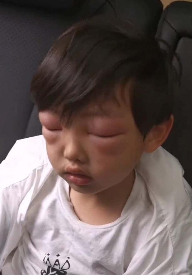 Con trai xinh như thiên thần nhưng chỉ sau một buổi ra ngoài ngắm hoa mà về nhà suýt không ai nhận ra bé-4