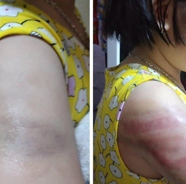 Bộ GĐ&ĐT chỉ đạo xử lý sớm vụ giáo viên dùng thước đánh học sinh bầm tím tay ở Nam Định