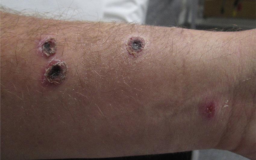 Gây hoại tử, chảy mủ trên da vẫn chưa là gì, bệnh Than còn có 2 thể khác nguy hiểm hơn, sau 1 tuần nhiễm bệnh có thể tử vong