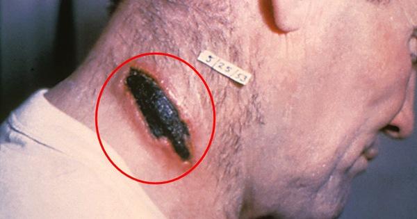 Thời điểm này cần cảnh giác với bệnh than - căn bệnh lạ gây lở loét da, có thể làm chết người