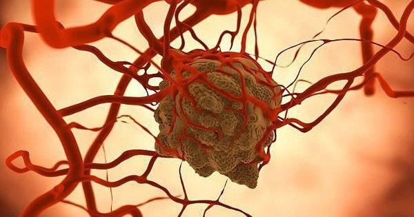 """Giám đốc Bệnh viện K: Tế bào ung thư rất """"khôn"""", đừng kiêng ăn, hãy làm điều này để chiến thắng bệnh"""