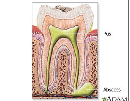 Áp xe răng không thể xem thường