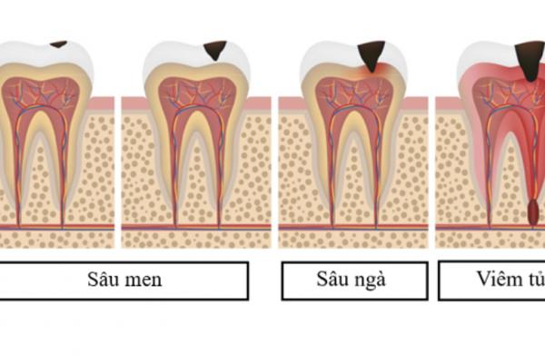 Toàn cảnh về bệnh sâu răng và biện pháp đề phòng