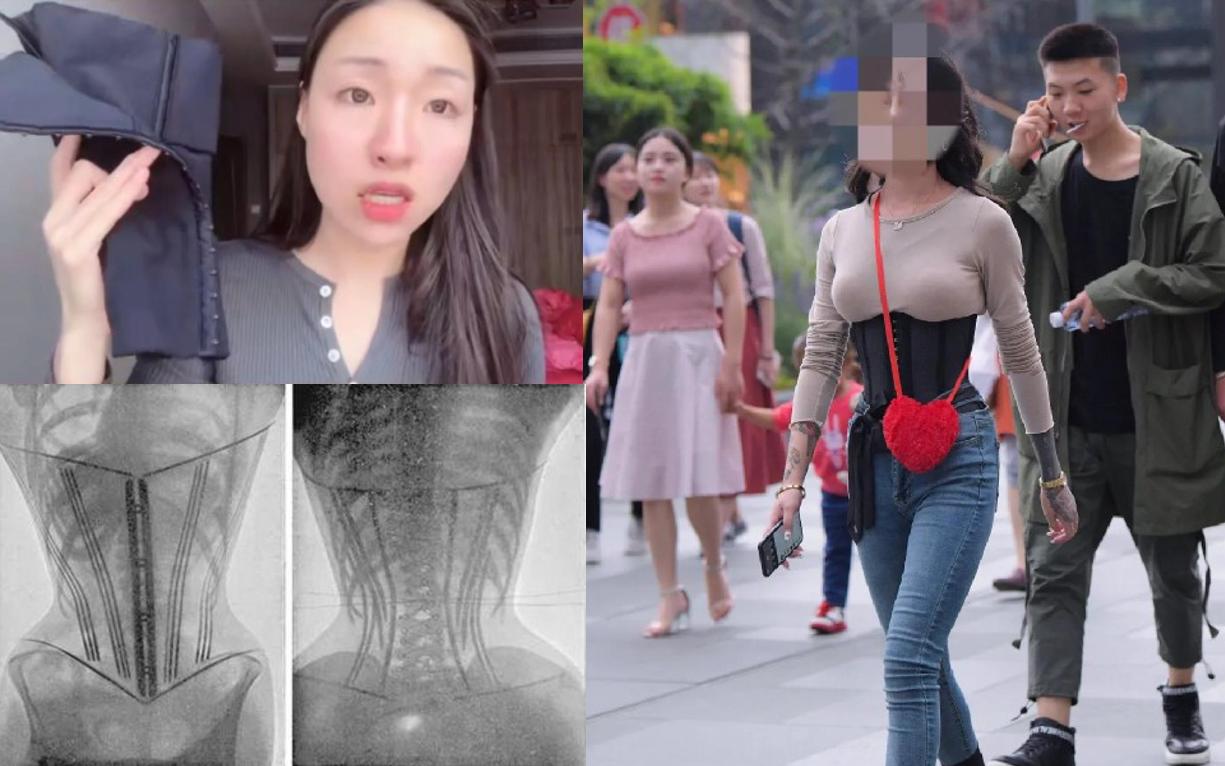 Đeo corset để giảm cân, giảm mỡ bụng sau sinh, một người bị bong tróc tử cung, nội tạng chảy xệ