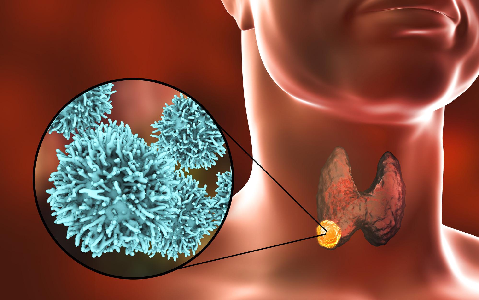 Ung thư tuyến giáp ngày càng trẻ hoá: thấy 6 điểm bất thường này xung quanh vùng cổ thì bạn nên đi khám ngay