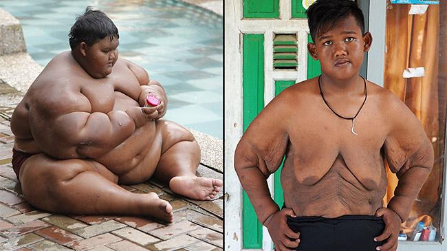Cậu bé nặng nhất hành tinh và hành trình phẫu thuật gian nan sau giảm béo