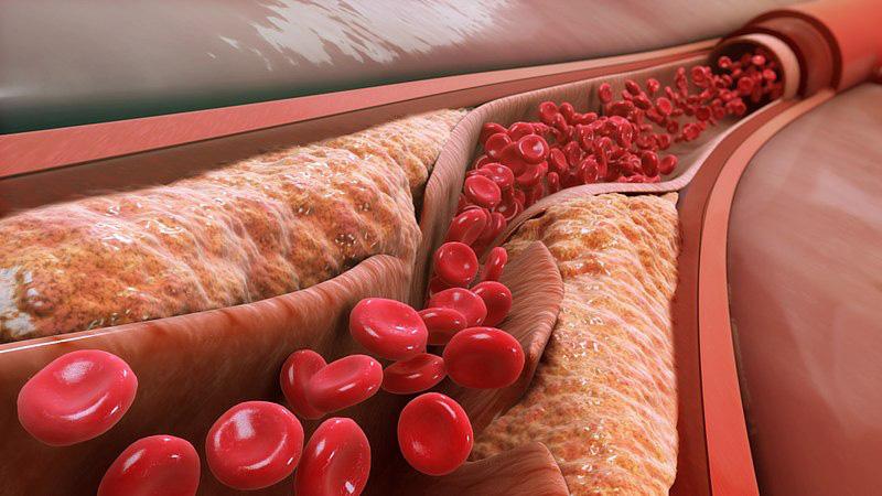 Một loại vắc-xin phòng bệnh tim mạch: Tiêm một mũi ở tuổi 20 sẽ khỏe mạnh đến suốt đời-2
