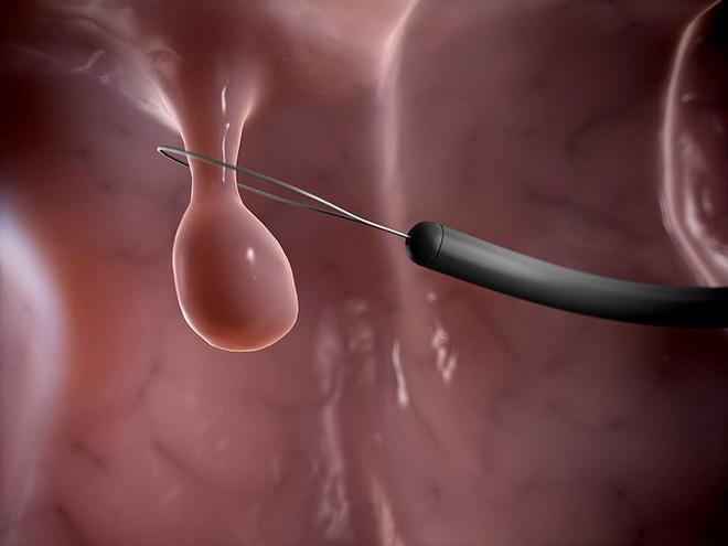 Polyp là gì? 4 bộ phận trong cơ thể nếu có polyp thì nguy cơ mắc bệnh ung thư là rất cao-1