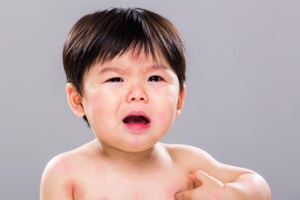 Những điều cha mẹ cần biết về dị ứng đạm sữa bò ở trẻ nhỏ
