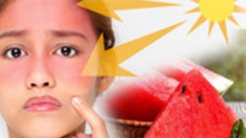 Ăn ngay 5 loại rau củ này tốt chẳng kém kem chống nắng, ngừa tia UV lẫn ung thư da