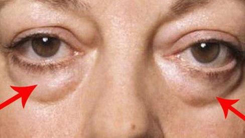Mách bạn cách xóa bọng mắt già nua xấu xí nhanh chóng và hiệu quả tại nhà