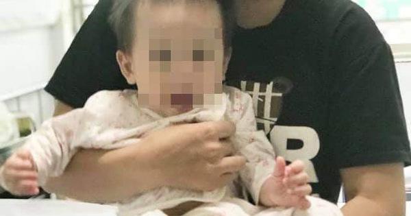 Gia tăng trẻ nhập viện do mắc tay chân miệng, trung bình mỗi ngày bệnh viện Nhi trung ương tiếp nhận khoảng 30-50 bệnh nhân