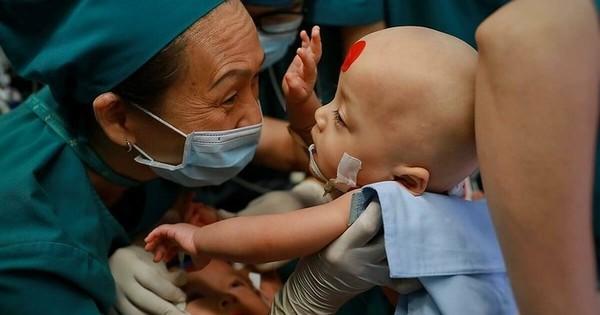 Ý nghĩ đặc biệt của hai dấu chấm màu xanh, đỏ trên trán hai bé song sinh dính liền trong ca đại phẫu thuật