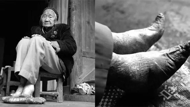 Ký ức bó chân kinh hoàng qua lời kể của cụ bà trăm tuổi có đôi chân 8cm