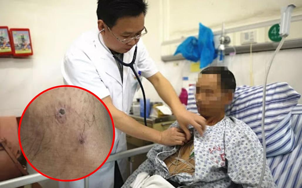 Một người đàn ông suýt mất mạng vì bị bọ hung cắn: Khuyến cáo của bác sĩ khi đến những nơi nhiều cây cối để tránh tình trạng tương tự