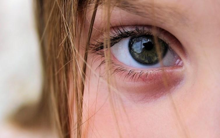 Mách bạn cách xóa bọng mắt già nua xấu xí nhanh chóng và hiệu quả tại nhà-2