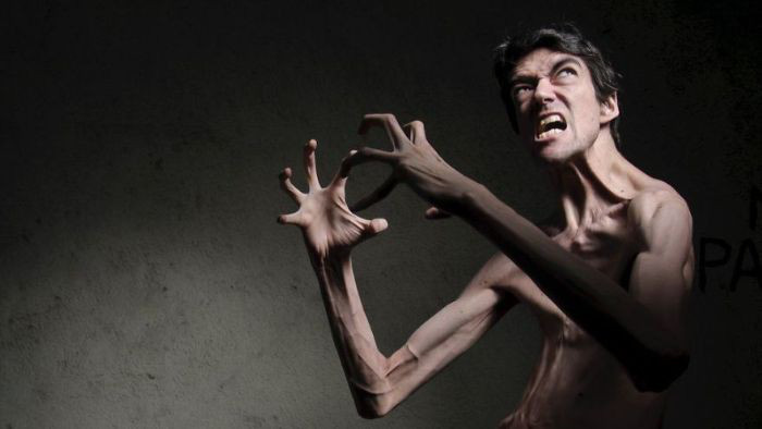Chứng bệnh lạ kỳ khiến chàng trai cao gần 2m trở thành món quà của thể loại phim kinh dị-5