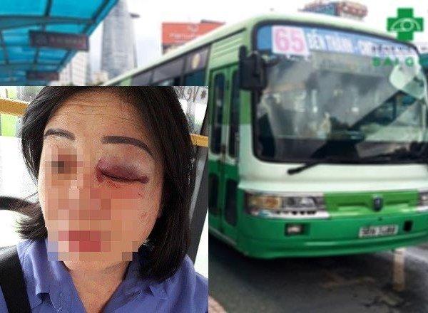 Bị nhắc nhở mở nhỏ nhạc, người đàn ông đánh nữ tiếp viên xe buýt sưng mắt