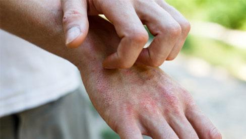 Bác sĩ phát hiện dấu hiệu lạ trên da của nhiều bệnh nhân Covid-19