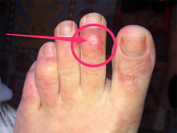 Bác sĩ phát hiện dấu hiệu lạ trên da của nhiều bệnh nhân Covid-19-2