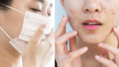 Đeo khẩu trang khiến da dễ lên mụn, làm thế nào để phòng tránh?