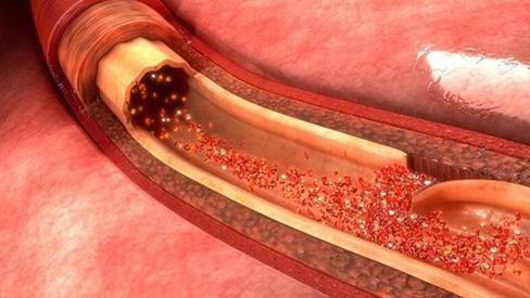 Sau khi ăn có 4 biểu hiện này cảnh báo mạch máu có thể bị tắc nghẽn, dễ gây đột quỵ