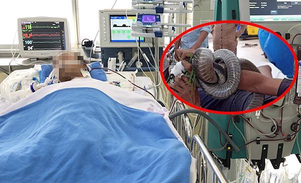 Vụ rắn hổ chúa dài 3m cắn người: Lọc máu liên tục, tiên lượng còn nặng