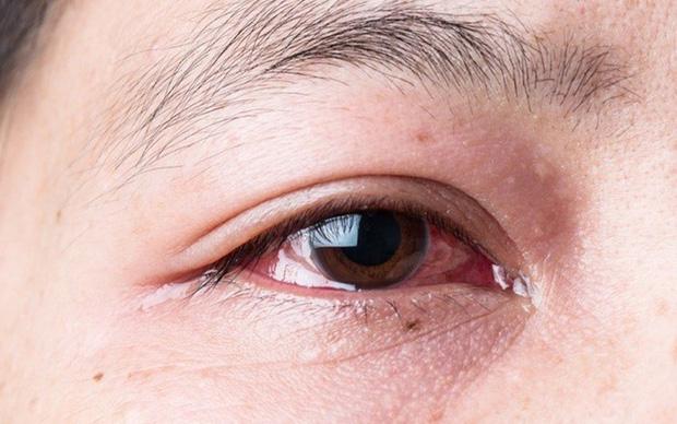 Người thường xuyên thức khuya dễ gặp phải 4 hiện tượng xấu trên mặt, không sửa ngay sẽ làm cơ thể sinh ra nhiều thứ bệnh-3