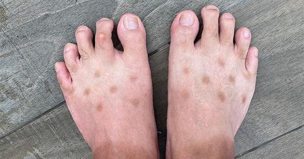 Chia sẻ ảnh bàn chân lốm đốm