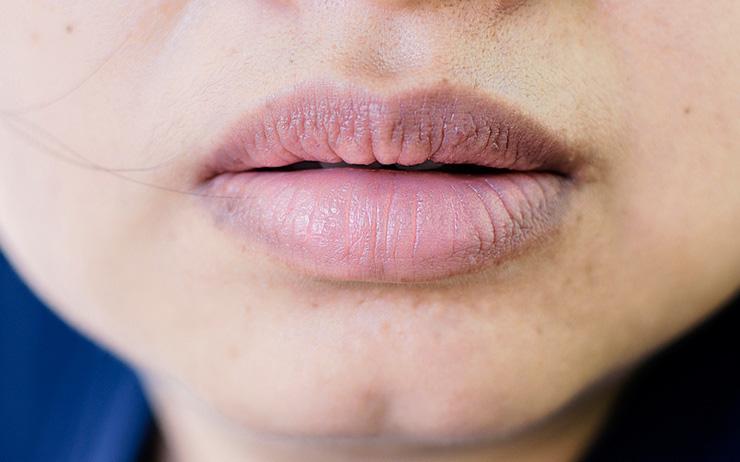 Con gái mắc bệnh phụ khoa thường có 3 đặc điểm khác thường xung quanh vùng miệng, kiểm tra xem bạn có nằm trong số đó