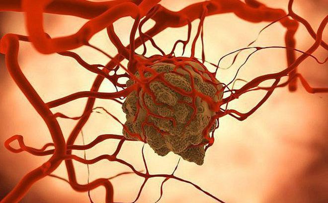 4 nhóm thực phẩm gây ung thư đầu bảng được nhiều tổ chức lên tiếng cảnh báo-1
