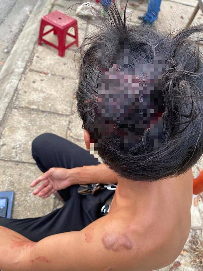 Clip: Tranh giành khách tại sân bay, 2 nhóm tài xế taxi đuổi đánh nhau bể đầu-2