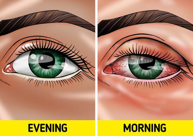 Quên tẩy trang trước khi đi ngủ: có 7 vấn đề sẽ xảy đến với sức khỏe lẫn nhan sắc của bạn-4