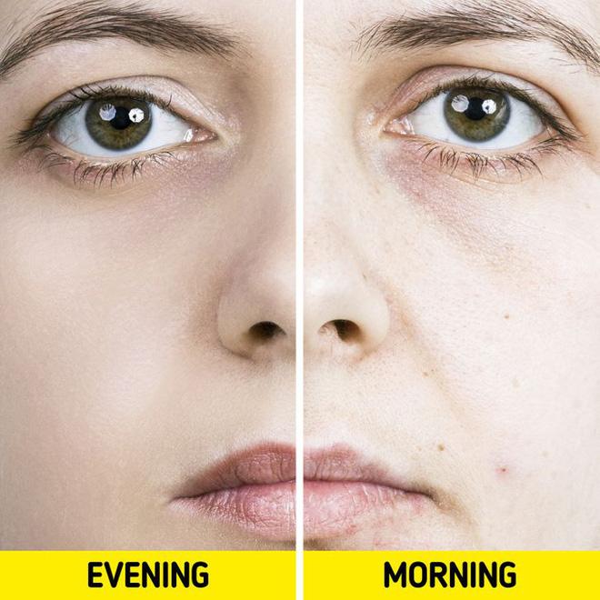 Quên tẩy trang trước khi đi ngủ: có 7 vấn đề sẽ xảy đến với sức khỏe lẫn nhan sắc của bạn-7