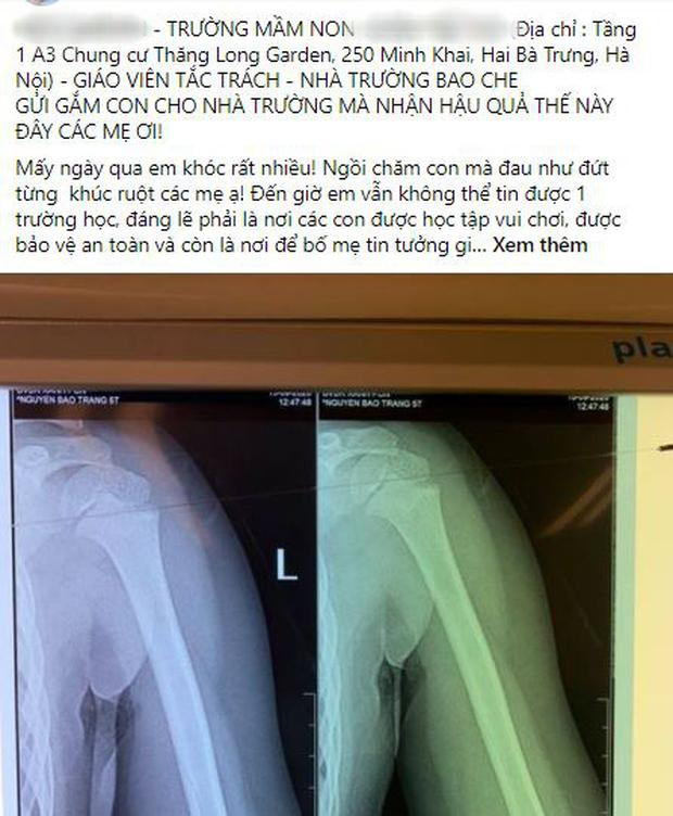 """Vụ bé gái 5 tuổi ngã gãy tay, nguy cơ bị liệt khi đang trong giờ học: Sẽ kiểm tra toàn bộ các trường trên địa bàn phường""""-1"""