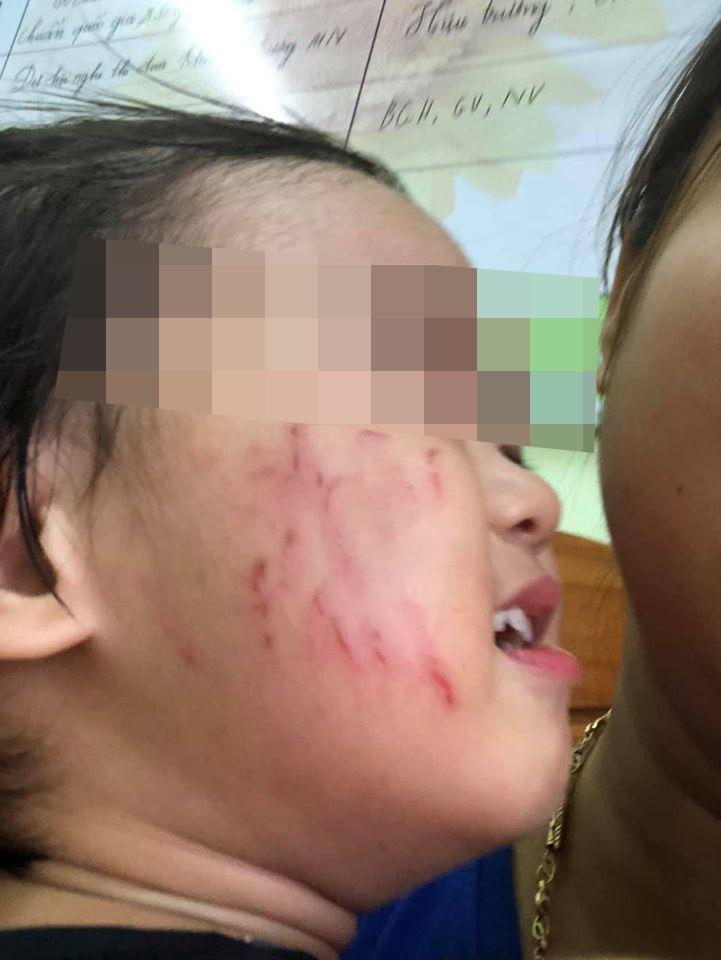 Con gái đi học mầm non bị bạn cùng lớp cào tím bầm cả má, mẹ uất ức vì cô giáo không gọi điện thông báo với phụ huynh-4